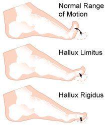 calzado especial para artrosis
